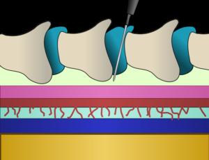 epidurialdiagram