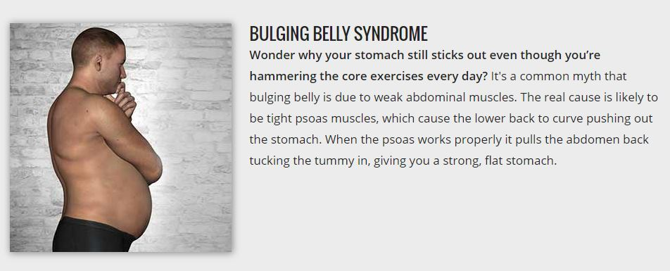 bulging belly syndrome